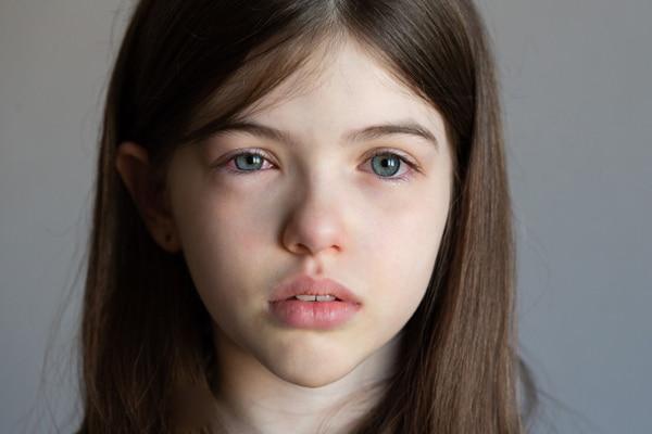menina com olhos irritados